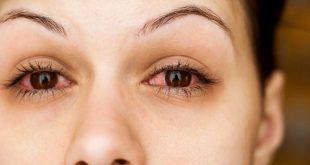 اعراض التهاب العين