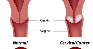 اعراض سرطان الرحم , تعرف ع اعراض الاصابه بسرطان الرحم